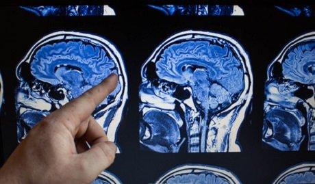 CT Aufnahme Gehirn