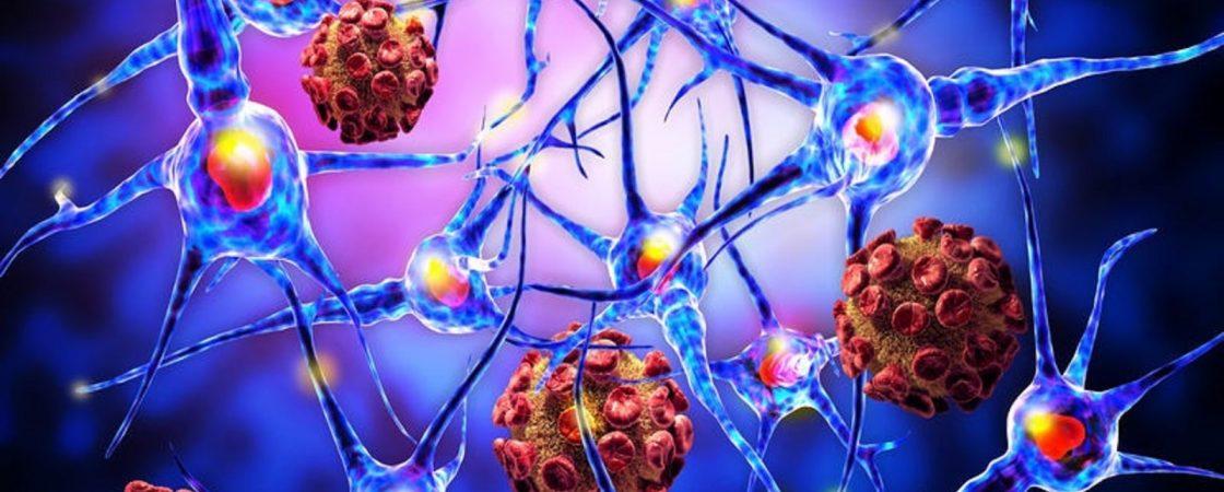 Das Immunsystem und mögliche Autoimmunkrankheiten
