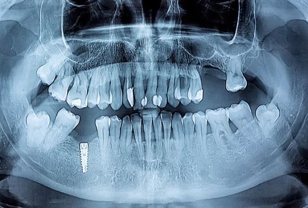 Panorama Röntgen Zähne / Gebiss